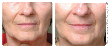 Laser Resurfacing Before & After Gallery